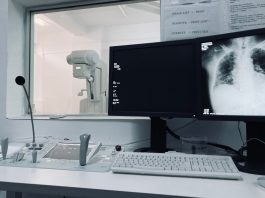 digitális röntgen