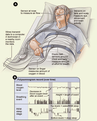 JUST BREATHE: How to find out if you have a sleep breathing disorder