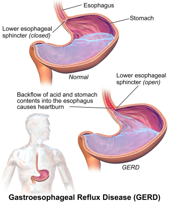 GERD Gastroesophageal Reflux Disease and Sleep