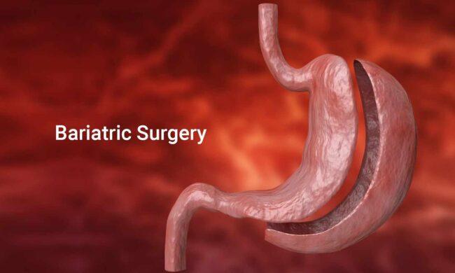 Chirurgia laparoscopică bariatrică