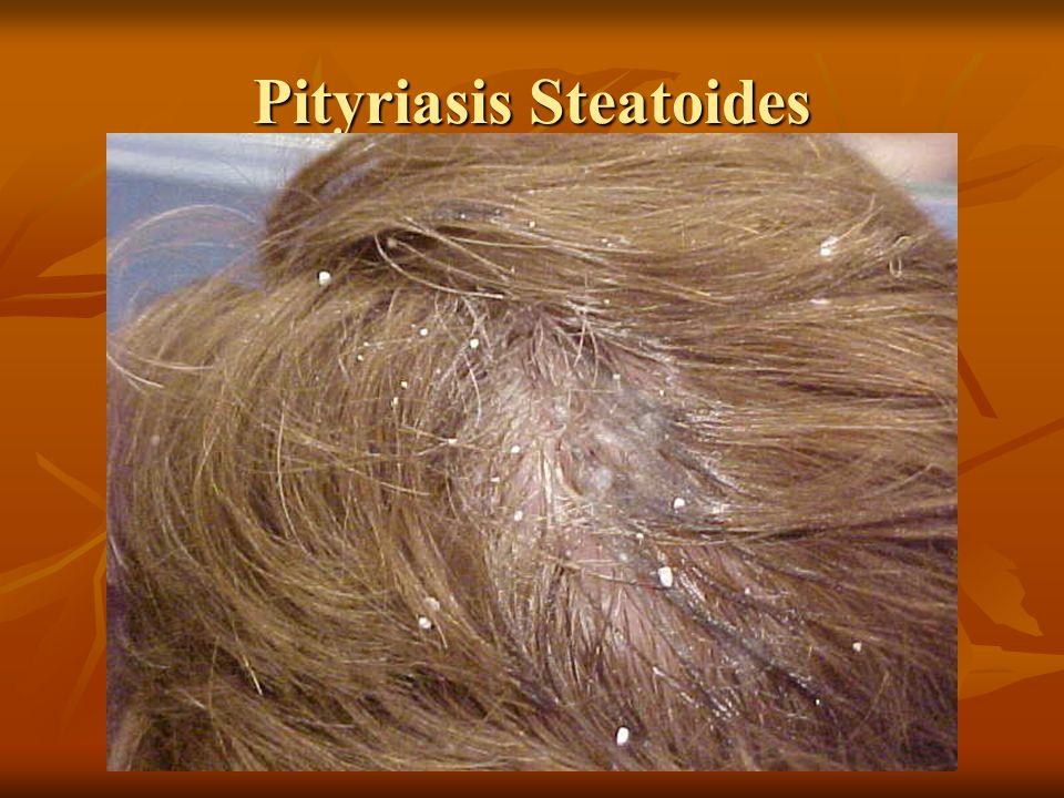Trichology Study Of Hair Ppt Video Online Download