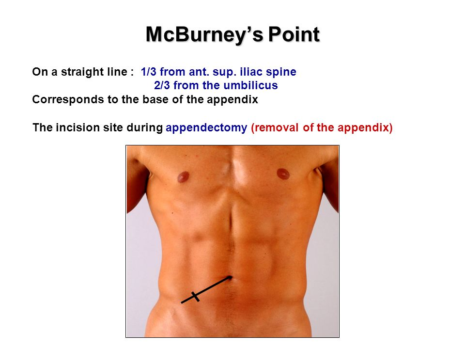 Image result for Mcburney's point