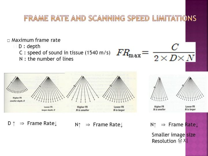 Frame Rate Ultrasound Physics | Siteframes.co
