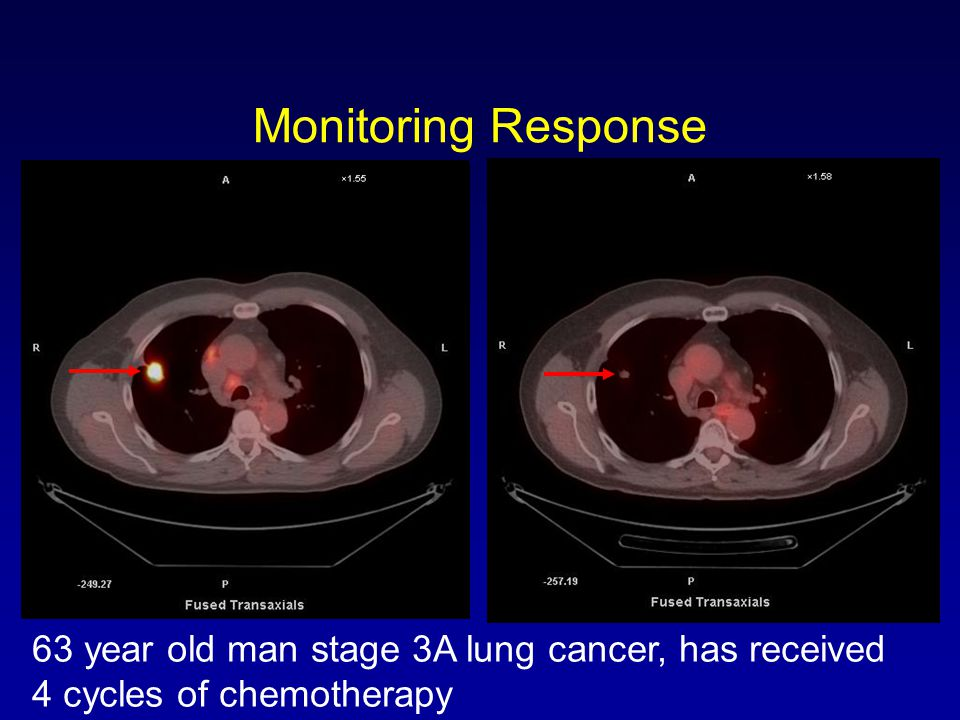 PETCT In Oncology George Segall MD Stanford University