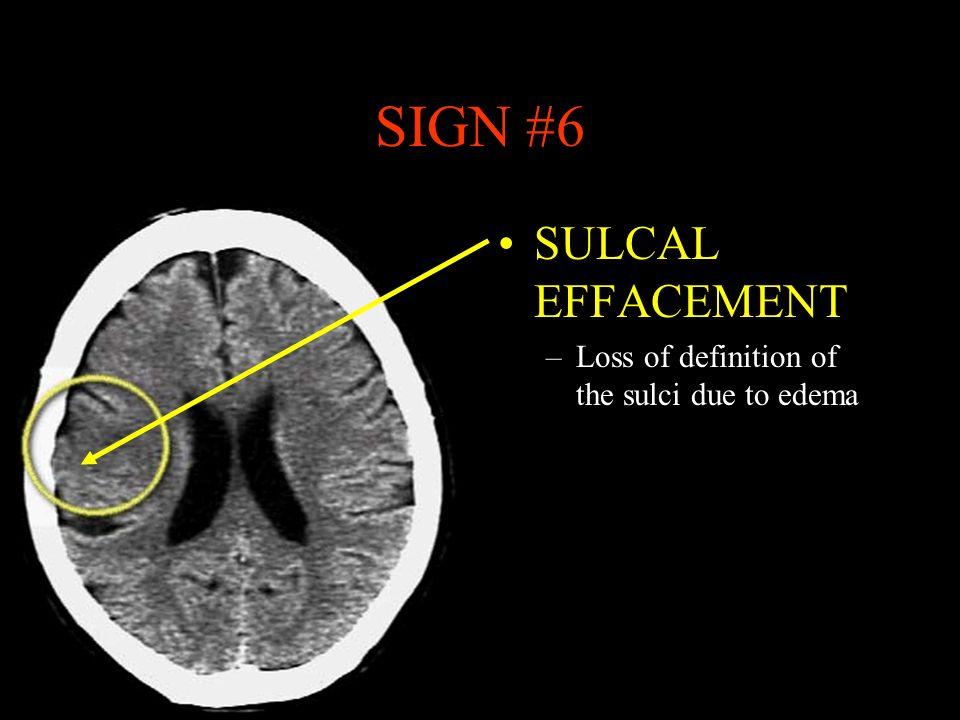 Normal Ct Scan Brain Anatomy