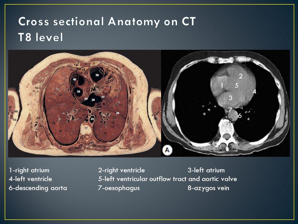 Ungewöhnlich Left Ventricular Outflow Tract Anatomy Ideen - Anatomie ...