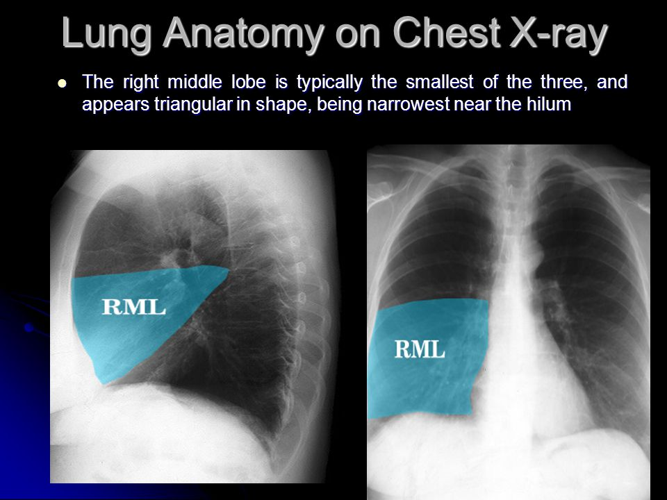 Lobe Infiltrate Middle Chest Right Ray X