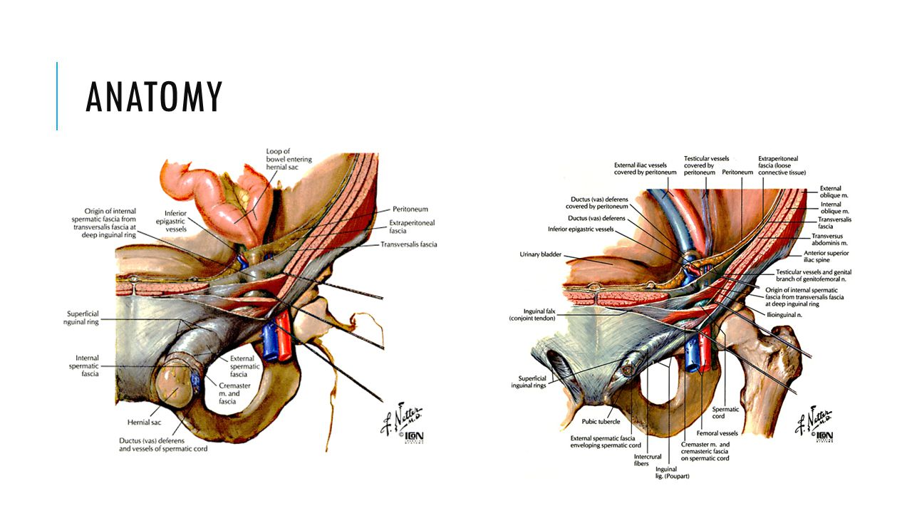 Amazing Anatomy And Physiology Of Hernia Ensign - Physiology Of ...