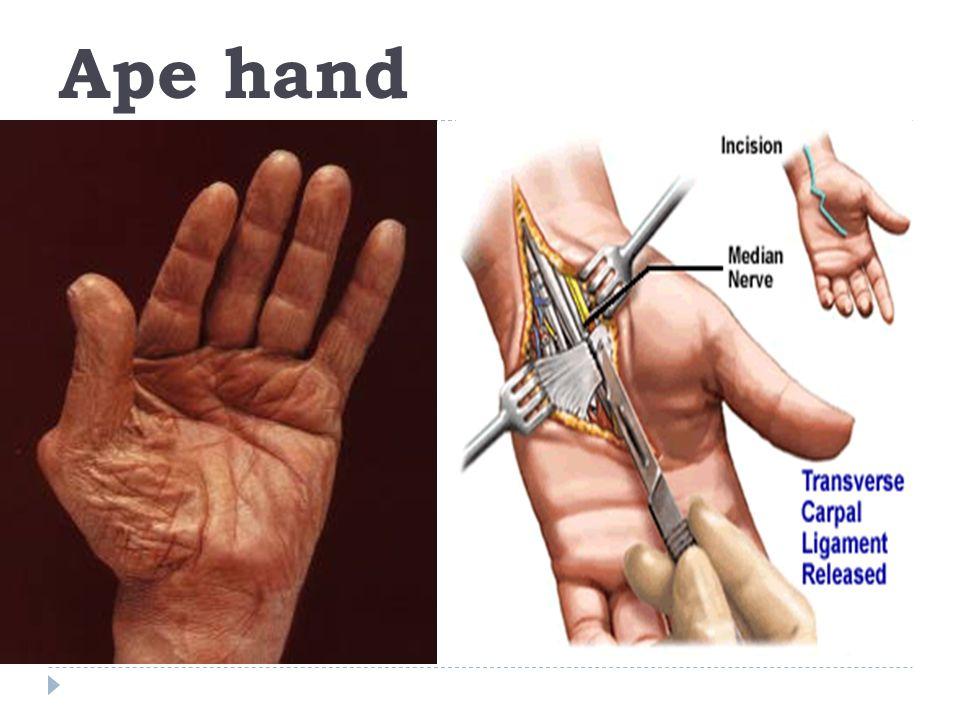 Claw Ape Hand Deformity