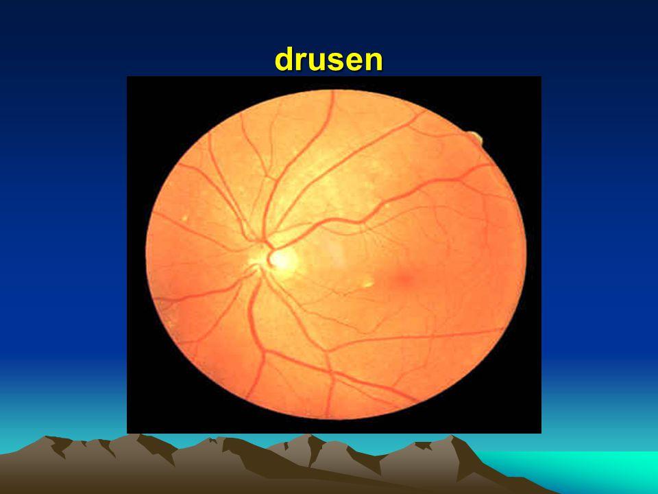 Drusen Retinal Pigment Epithelium