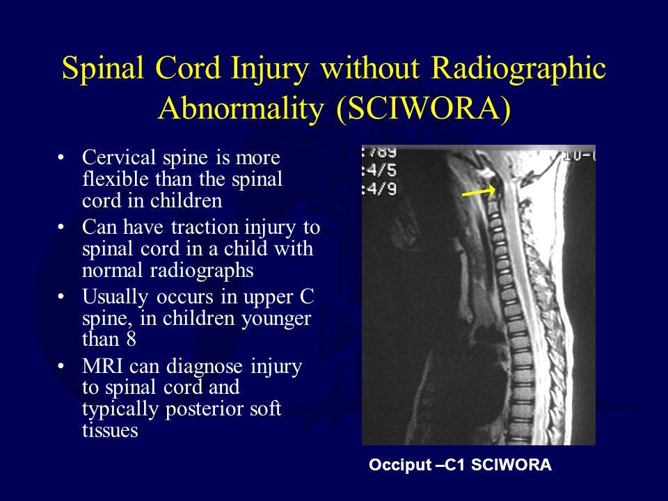 Normal Cervical Spine Mri Pics
