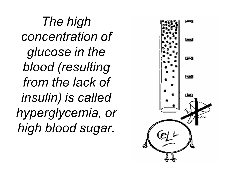 Glucose Metabolism Amp Diabetes