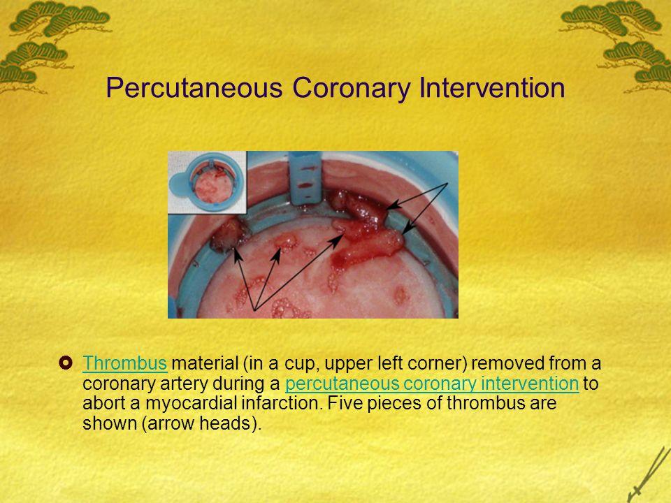 Occluded Coronary Artery