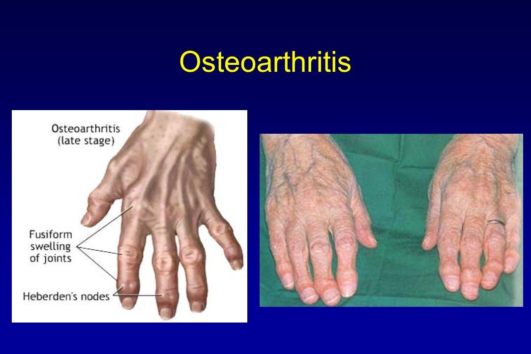 Arthritis In Feet Symptoms