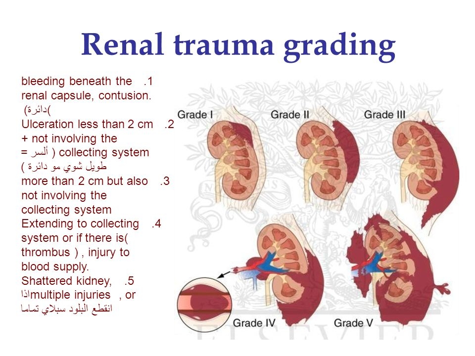 Mri In Renal Collecting System