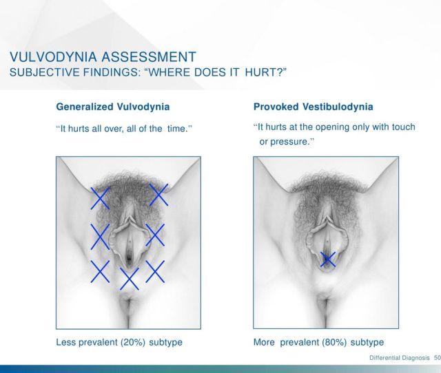50 Vulvodynia Assessment Subjective