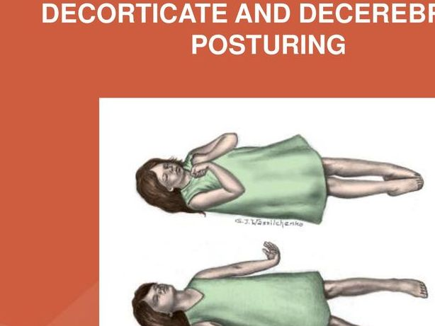 HD Decor Images » Decorticate Decerebrate And Opisthotonic Posturing     Oh Decor Curtain Decorticate And Decerebrate Posturing