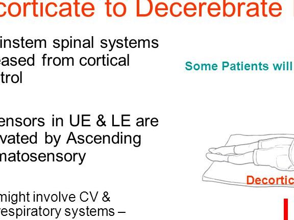 HD Decor Images » Brainstem     spinal systems   ppt video online download Decorticate to Decerebrate Posture