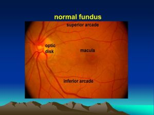 Normal fundus normal fundus ophthalmoscopy Indirect Direct  ppt video online download