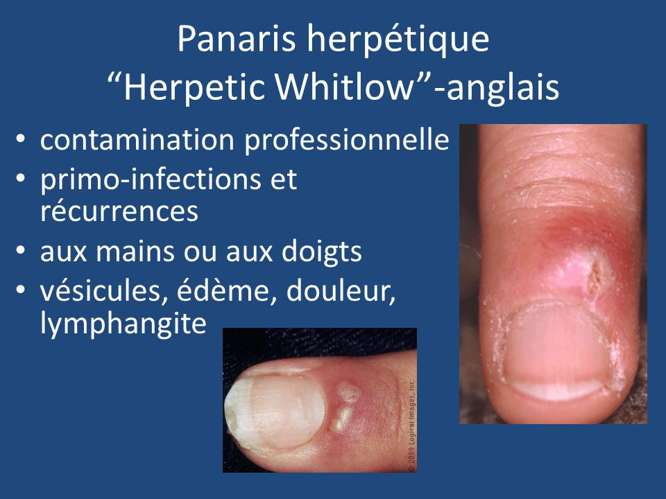 Whitlow Herpetic Severe