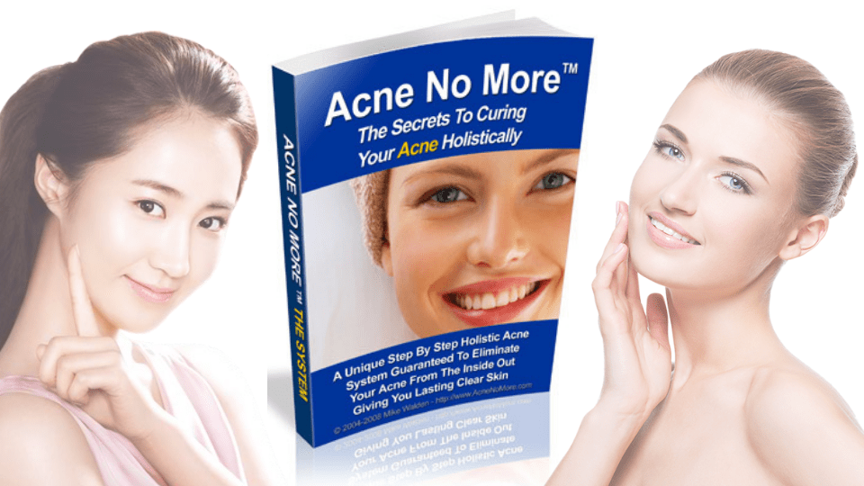 Acne No More By Mike Walden