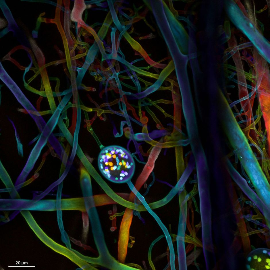 Multi-nucleate spores and hyphae of a soil fungus (arbuscular mycorrhizal fungus).Microscopic images reveal the hidden beauty of the invisible world, tech news, science news, news