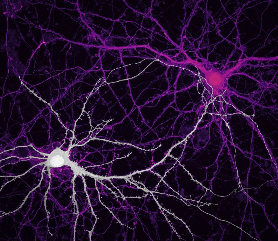 Connections between hippocampal neurons (brain cells).Microscopic images reveal the hidden beauty of the invisible world, tech news, science news, news