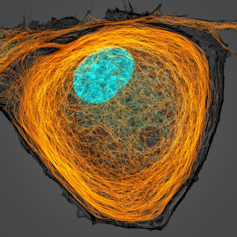Microtubules (orange) inside a cell. Nucleus is shown in cyan., Microscopic images reveal the hidden beauty of the invisible world, tech news, science news, news