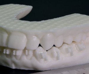 3D Scanning in Dentistry and Orthopedic