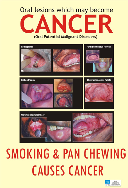Oral Cancer Eng Dp 91e Smart Doc Posters