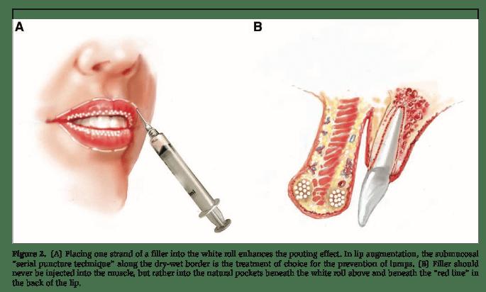 Mesotherapie und Smile Design 1
