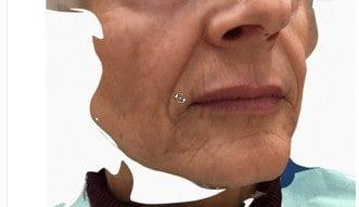 3D Simulation des Lachens 1