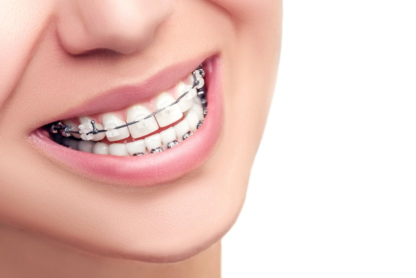 Braces. Orthodontic Treatment. Dental Care Concept. Beautiful WomanHealthy Smile close up. Closeup Ceramic and Metal Brackets on Teeth. Beautiful Female Smile with Braces.