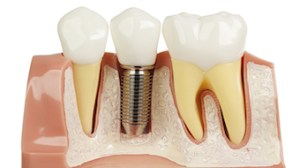 Example of dental implant