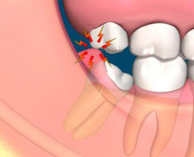 Pericoronitis – Infection associated with Wisdom Teeth