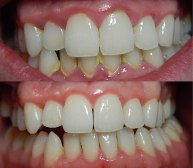 teeth cleaning before and after