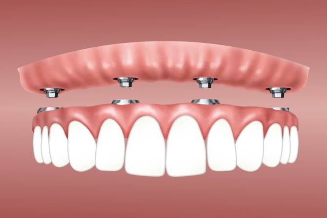 implant supported complete denture