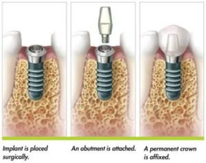 dental-implants-precise