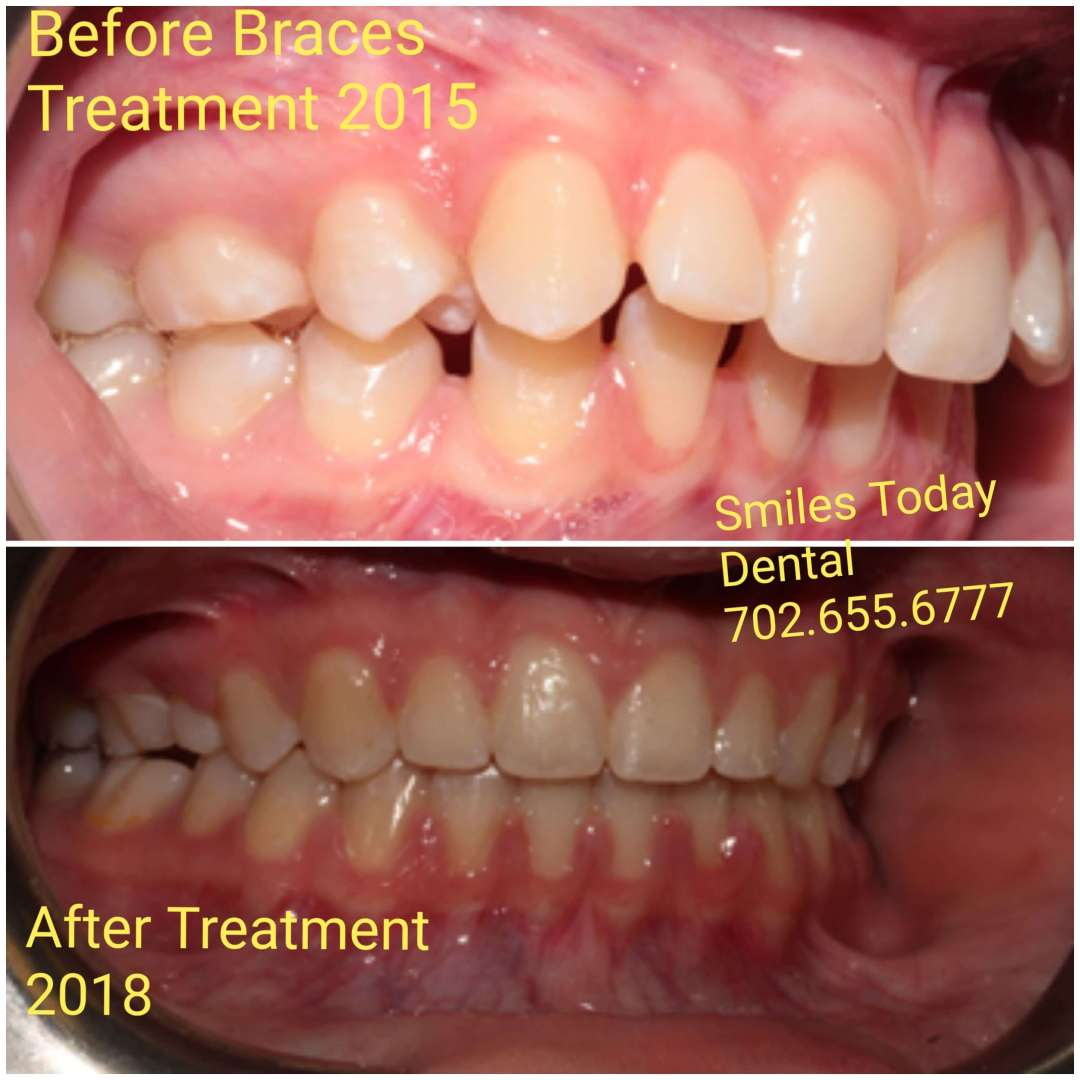 braces before and after photo 3 heather macias