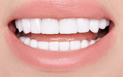 Resin Veneers Vs. Veneers?