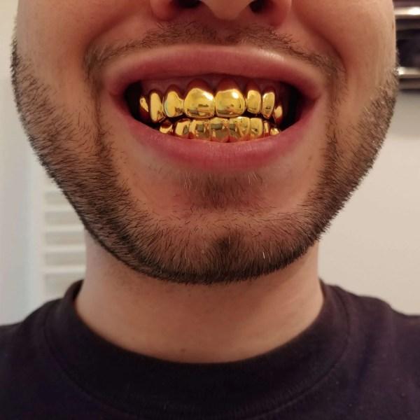 Grillz für den Ober - und Unterkiefer über je acht Zähne gelb vergoldet