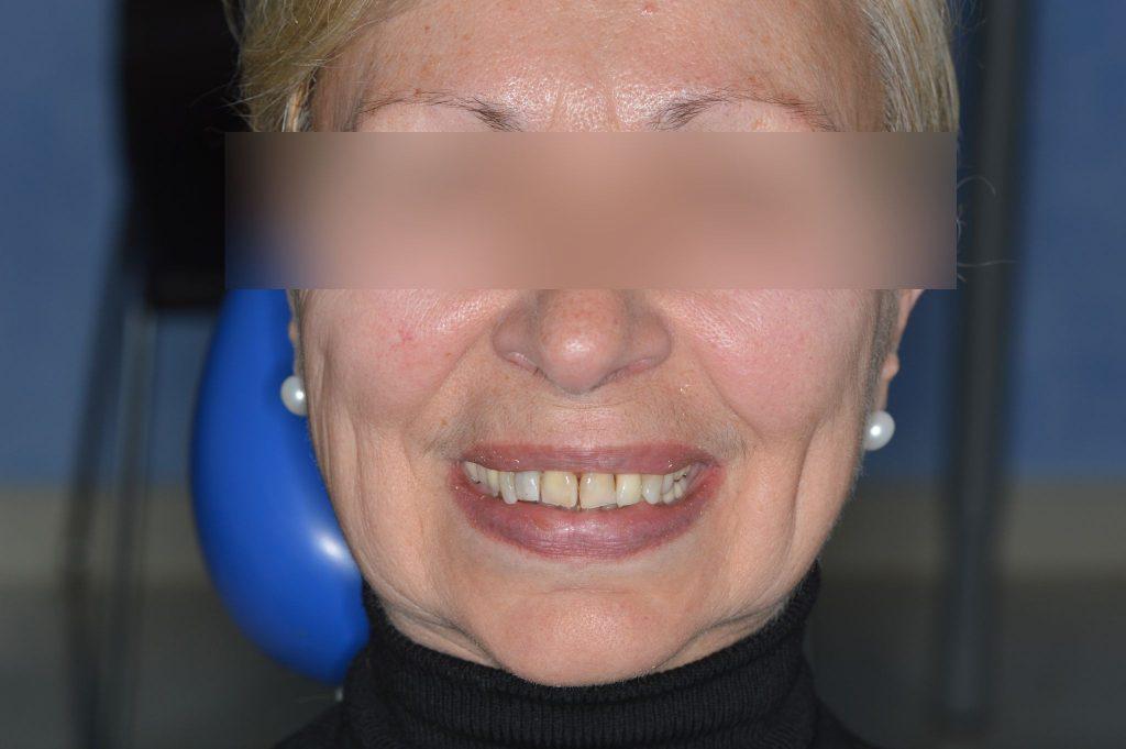 Αισθητικη Οδοντιατρικη Πειραιας