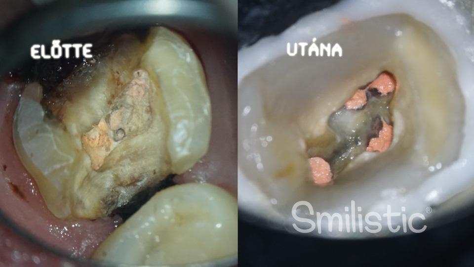 Re:endo | Mikroszkópos gyökérkezelés és restaurátumok