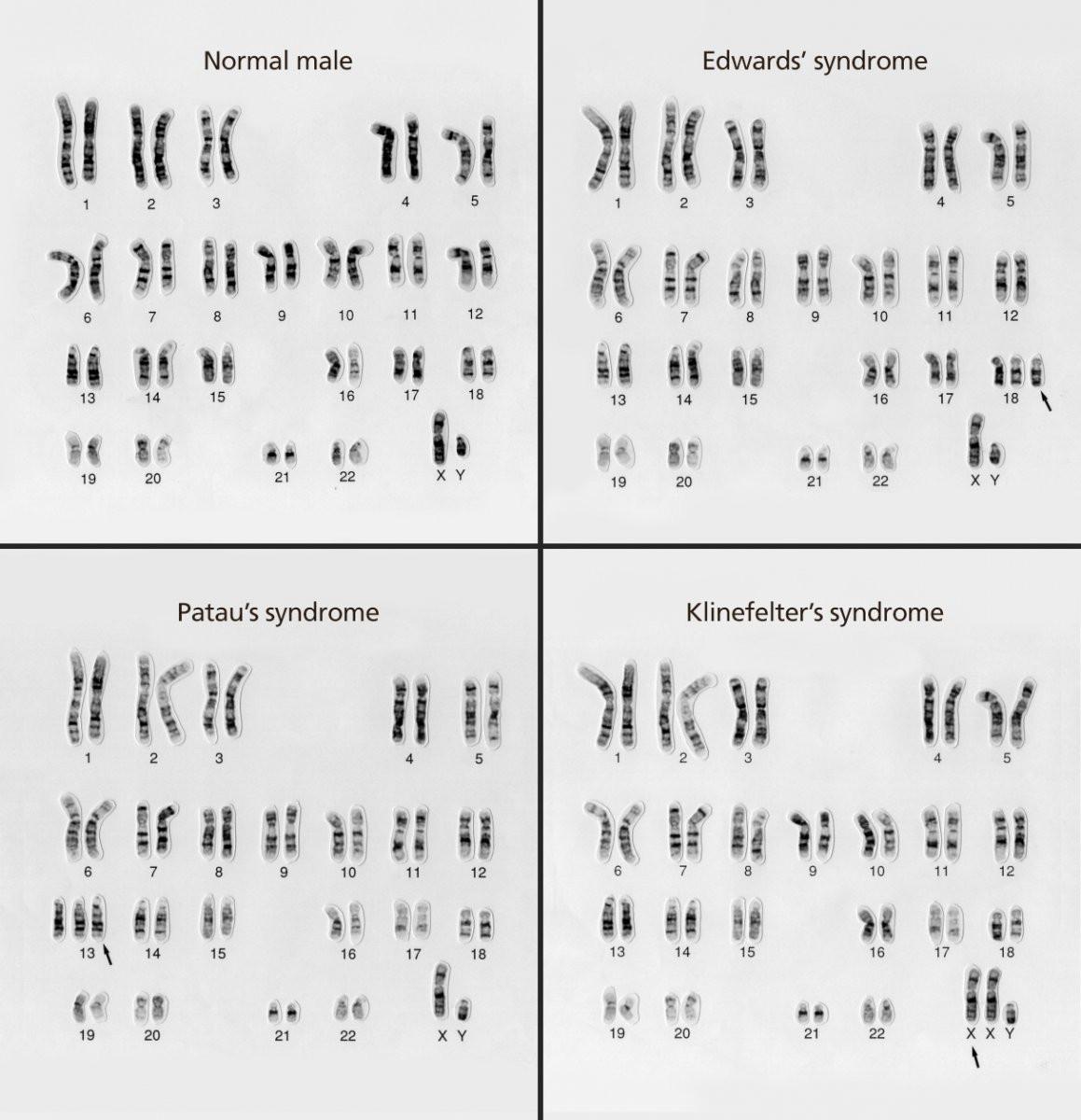 30 Biology Karyotype Worksheet Answers Key