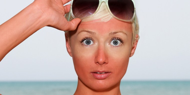 10-best-ways-to-deal-with-sunburns
