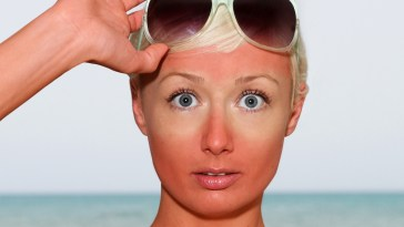 10-best-ways-to-deal-with-sunburns