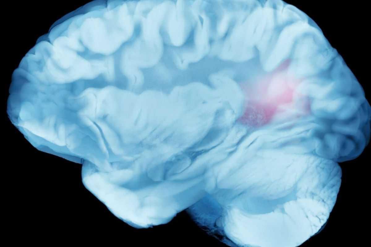 Потребность во сне контролируется корой головного мозга