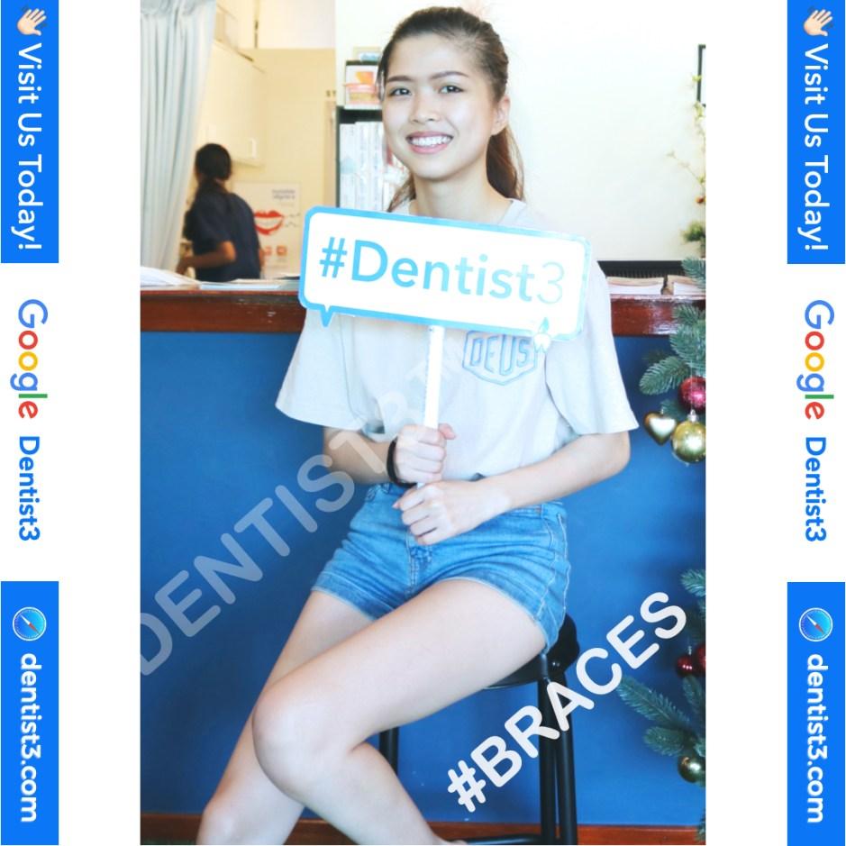 braces_copy_2.jpg