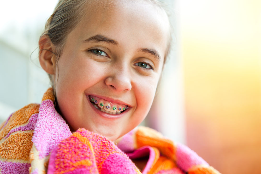 the-most-affordable-braces-in-orange-county