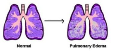 Lungs affected by Pulmonary Edema